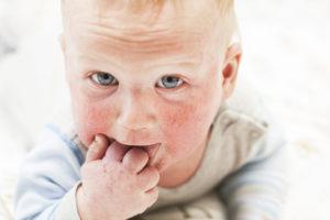 Atopowe zapalenie skóry u dzieci