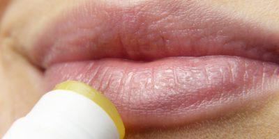 Opryszczka – przyczyny, objawy i leczenie