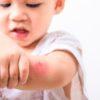 Jakie zagrożenia czyhają na dzieci w domu?